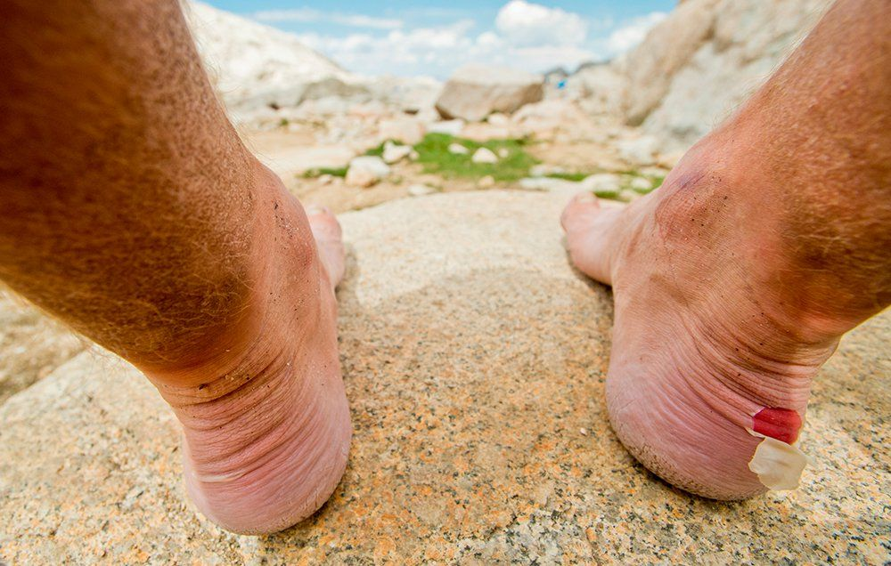 The Fastest Way To Heal A Blister Men S Health
