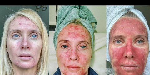 margaret murphy viral tanning photos