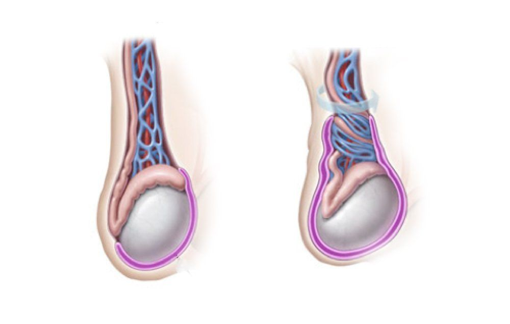 Testicular Torsion How You Can Lose A Testicle In Your Sleep