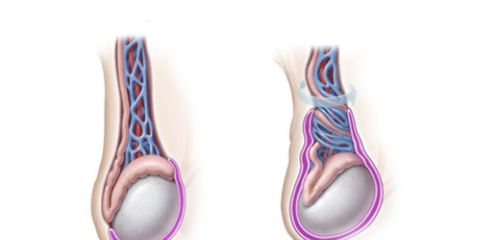 testicle torsion