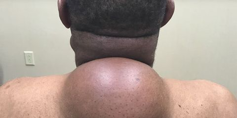 dr pimple popper removes cyst