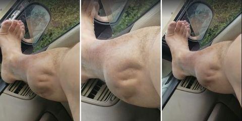 leg cramp bursts skin