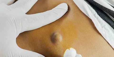 benign cyst removal