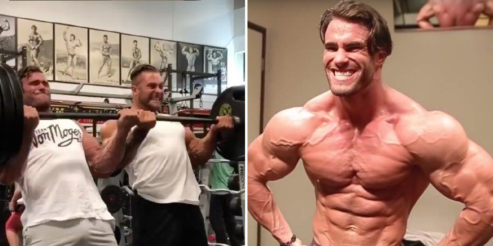Bodybuilder Calum von Moger Shows His Body Post-Surgery