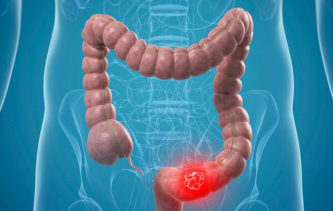 Should Colon Cancer Screening Start Younger At Age 45 Men S Health