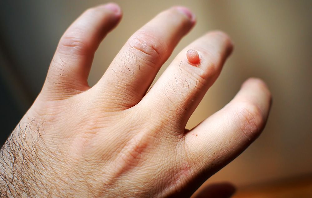 Home Remedies For Warts: Can Duct Tape Cure Warts? | Men's Health