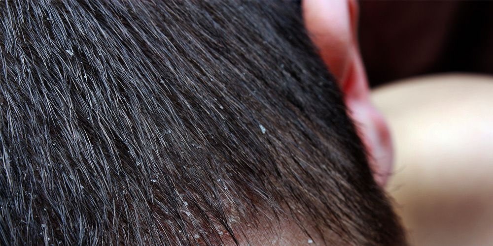 The Best Products To Get Dandruff Free Hair Mens Health