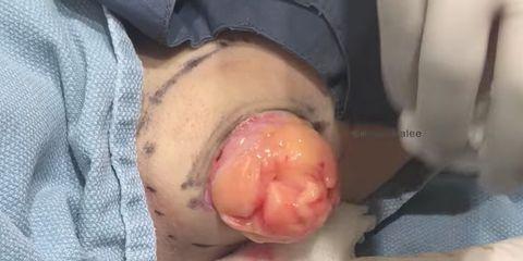 Dr. Pimple Popper chicken pimple