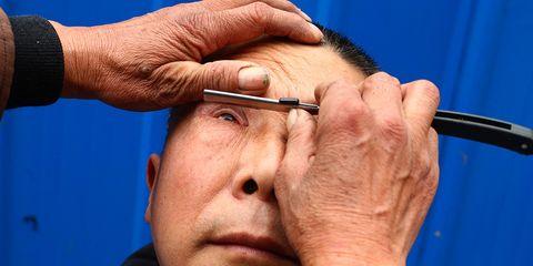 eyelid shaving in China