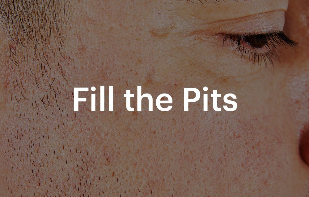 Here's How to Get Rid of Your Acne Scars | Men's Health