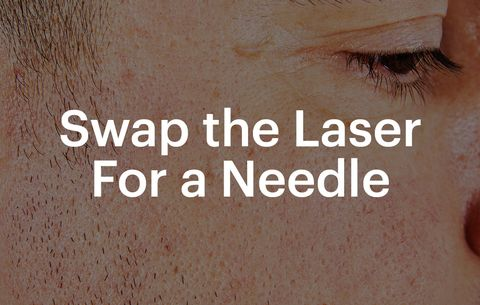 swap the laser for a needle