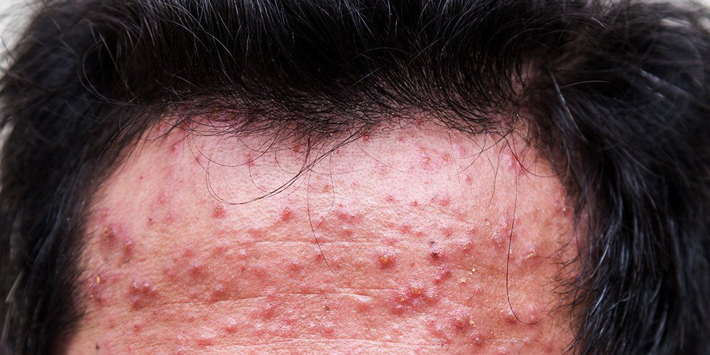 How to Treat Cystic Acne - Treatments and Medications for ...