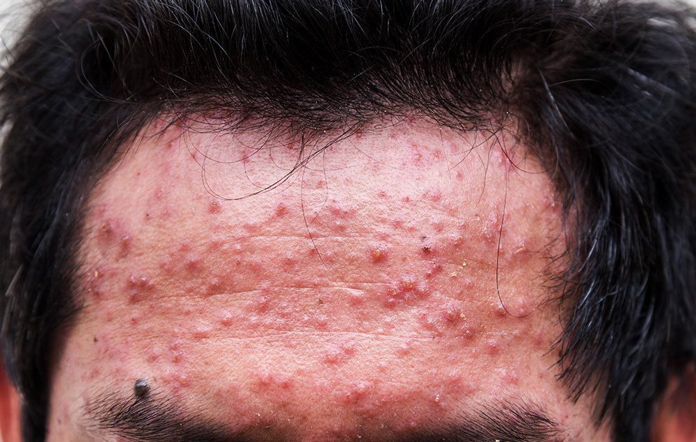 How to get rid of acne in the back of your head
