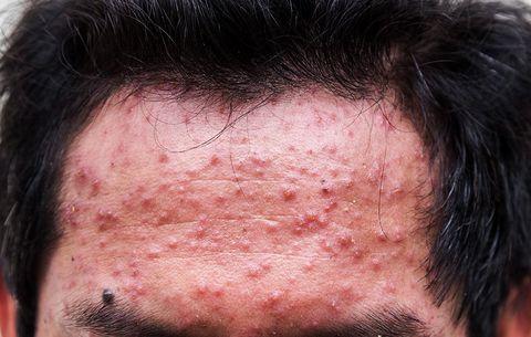 Swollen Acne