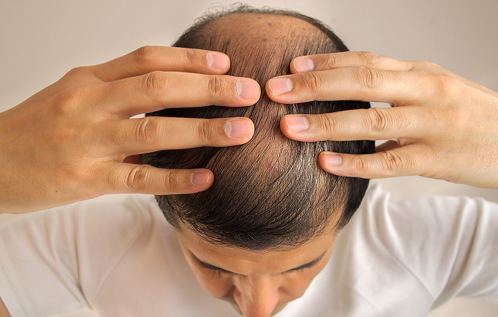 Hair Loss Has Been Linked to Late Summer and Early Fall