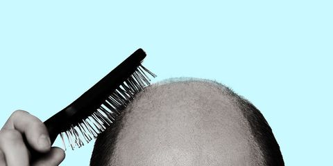 what to do when losing you hair
