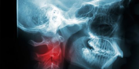 head/neck cancers on the rise
