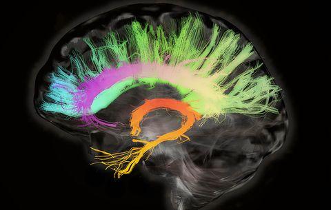 Rejuvenate an Aging Brain