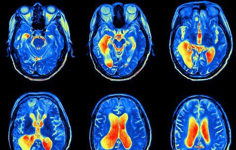 predict brain age