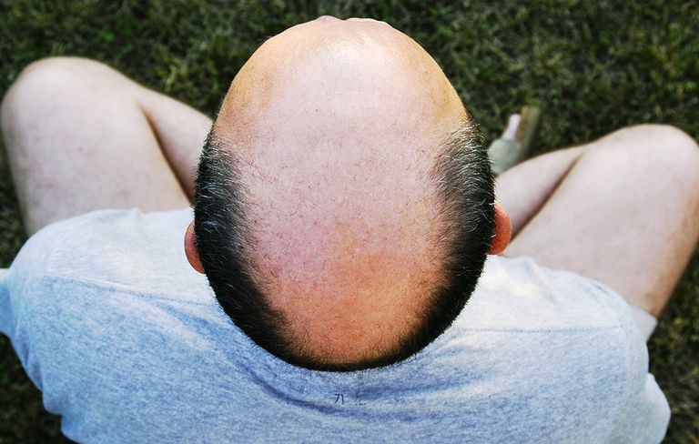 7 Ways to stop hair loss in its tracks