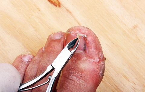 How To Clip Your Toenails