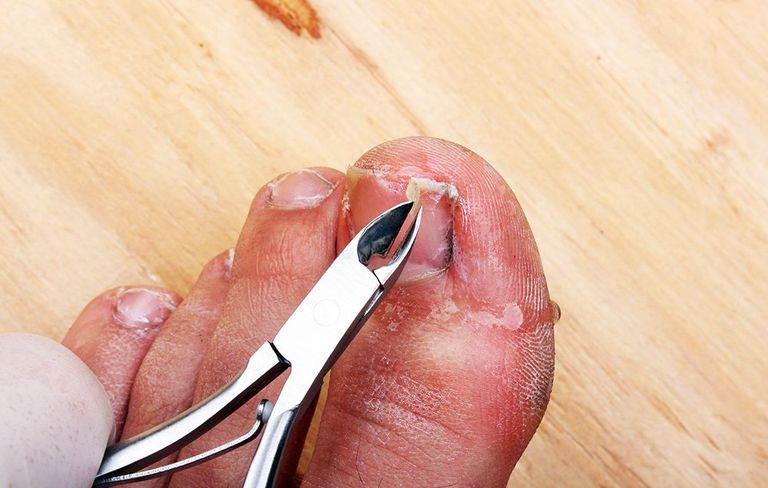 How to Clip Your Toenails: Prevent Ingrown Toenails | Men\'s Health