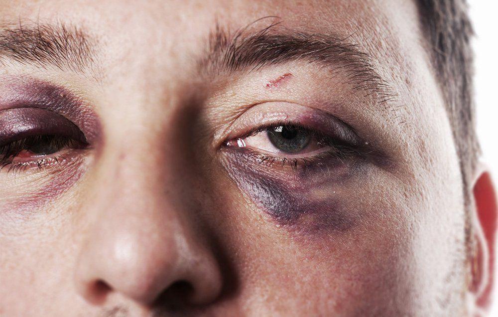 The Best Way to Heal a Black Eye | Men's Health