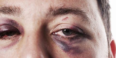 how to heal black eye