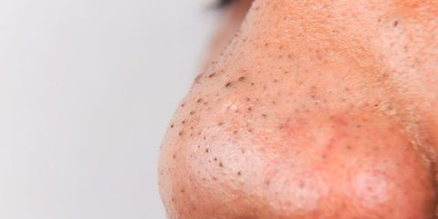let someone squeeze blackheads