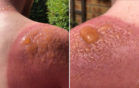 This Man's Blistering Burns Proves Why You Should Always Wear