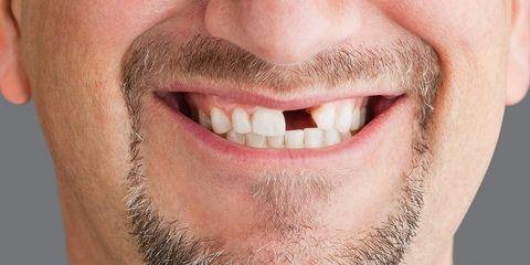 DIY dental work