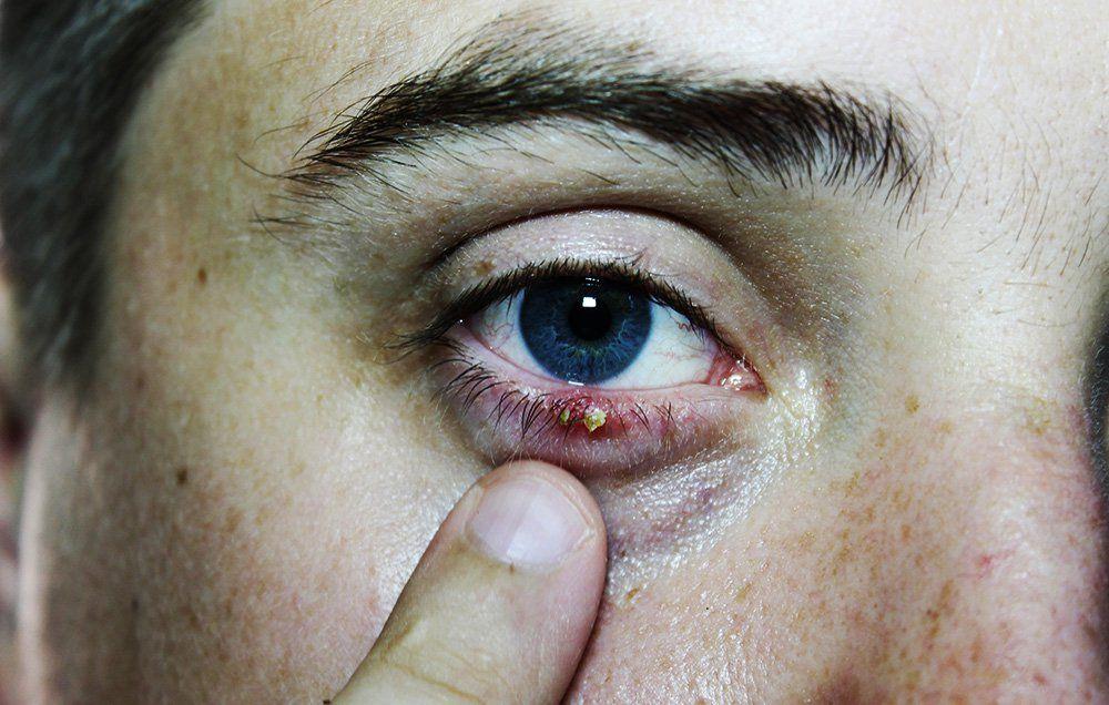 Eye Stye Treatment What Causes Eye Styes Mens Health