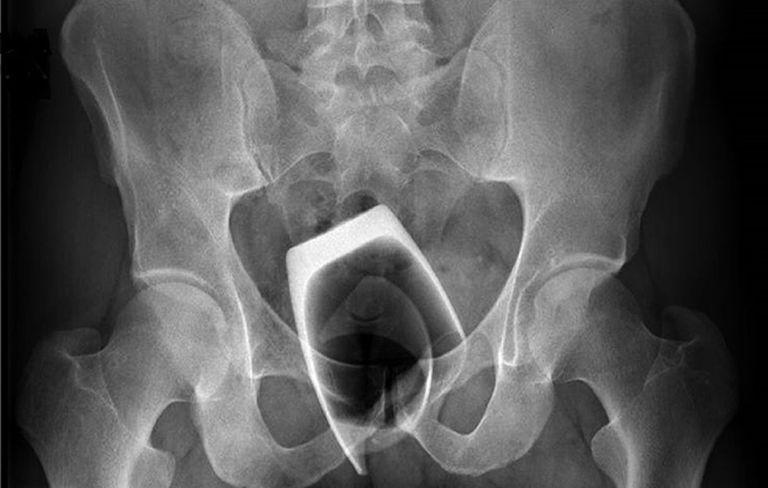 bowel-obstruction-anal-sex-darian-interracial-slut-wife