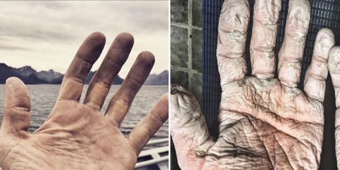 Olympic rower's hands after rowing 600 miles in Arctic