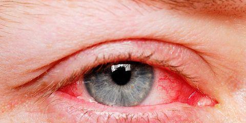 Face, Eye, Iris, Skin, Eyebrow, Close-up, Organ, Red, Nose, Eyelash,