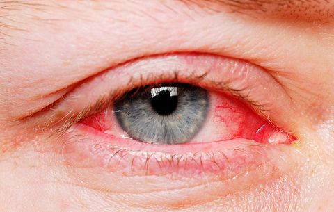 Bloodshot Eyes: How to Reduce Eye Redness| Men's Health