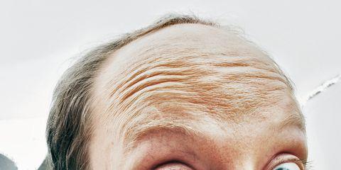 balding may be sign of heart disease