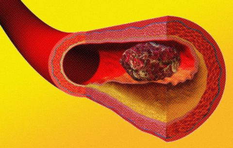 Here's Why Blood Clots Are So Deadly—and How to Know If You Have One