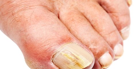 What Is That Crusty Yellow Stuff on Your Toenails?