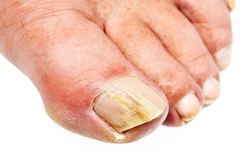 What Causes Toenail Fungus? How to Prevent Onychomycosis, or Crusty ...