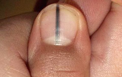 Black Line Down Fingernail