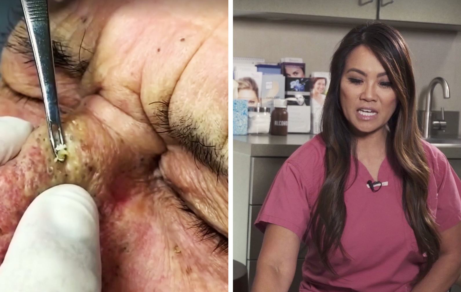 We Talked To Dr Pimple Popper About Why Zit Popping Videos