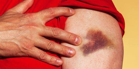 reasons you bruise easily
