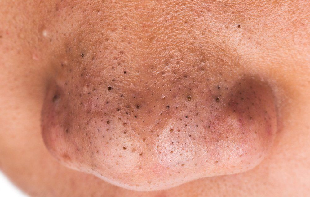 How to Remove Blackheads on Your Nose