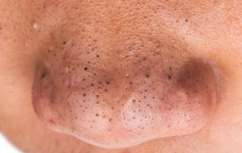 Best Blackhead Remover For Nose Uk   Ibtisaama Rajput