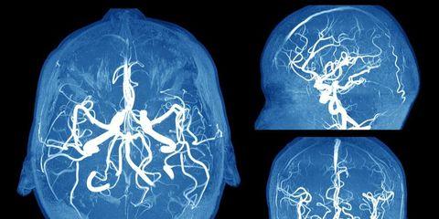 Brain Aneurysm warning signs