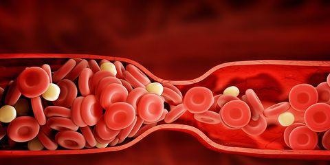 blood clot signs