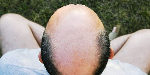 startup wants to cure baldness