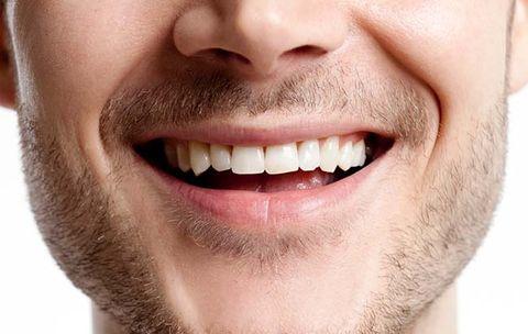Kết quả hình ảnh cho smile teeth