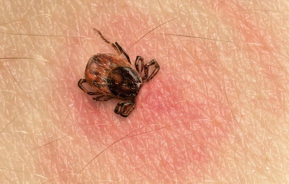 How to Remove a Tick From Your Balls - How to Get Rid of Ticks